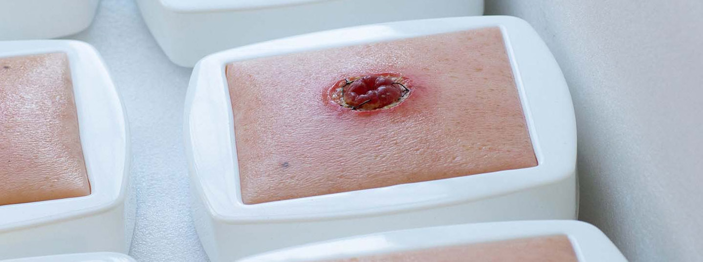 stoma-modelle-von-medicalfx-silikonwunden